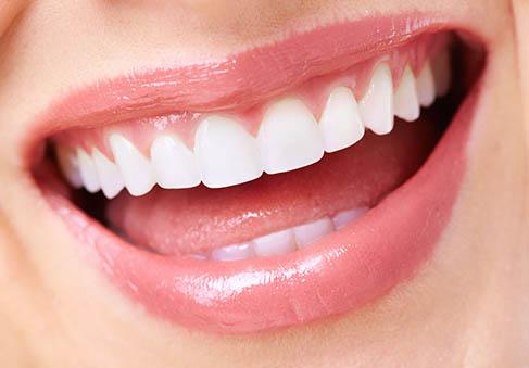 Chcete krásne zuby